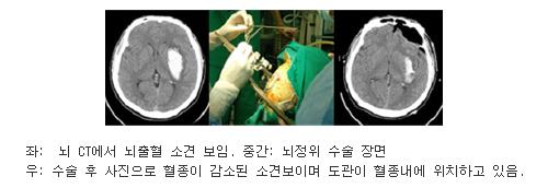 좌측사진은 뇌 CT에서 뇌출혈 소견 보임, 중간사진은 뇌정위 수술 장면, 우측사진은 수술 후 사진으로 혈종이 감소된 소견보이며 도관이 혈정내에 위치하고 있음