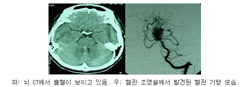 좌측사진은 뇌 CT에서 출혈이 보이고 있고, 우측사진은 혈관 조영술에서 발견된 혈관 기형 모습