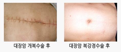 대장암 개복수술 후와 대장암 복강경수술 후 사진